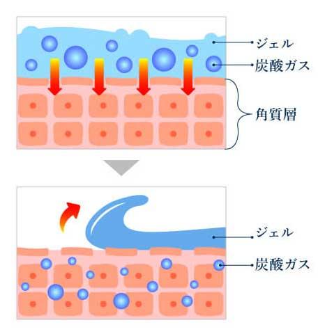 炭酸ガス 肌の角質層まで効率よく吸収